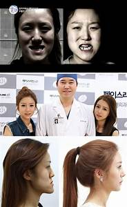 The South Korean twin sisters who got plastic surgery that ...
