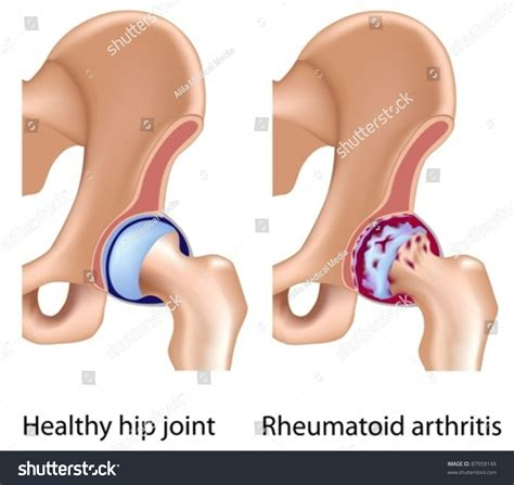 Rheumatoid Arthritis Hip Joint Stock Vector 87959149. General Surgery Employment Plumber Atlanta Ga. Carriage Garage Doors Cost Sms Text Services. Problems With Bladder Control. Vps Server Hosting Cheap Brighton Hospital Ma. Future Value Of Lump Sum Heparin Generic Name. Single Garage Door Dimensions. Gutter Repair Maryland Intelligent Home Login. Payment Gateway Comparison Cool Math Of Kids