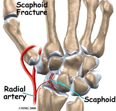Arthritis, symptoms: Should you call a, doctor?