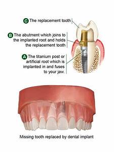 Dental Implants Austin