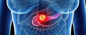 Pancreatic Cancer  U2013 Experts And Specialists In Germany