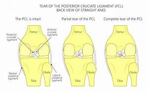 What Is The Difference Between An Acl Sprain And Tear