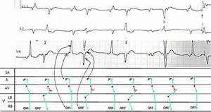 Ladder Diagram For Ecg Mechanism  See Text