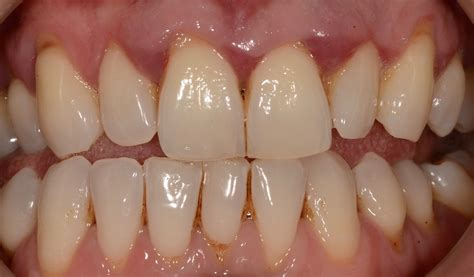 Possible Reasons for a Receding Gum Line | Balsall Common
