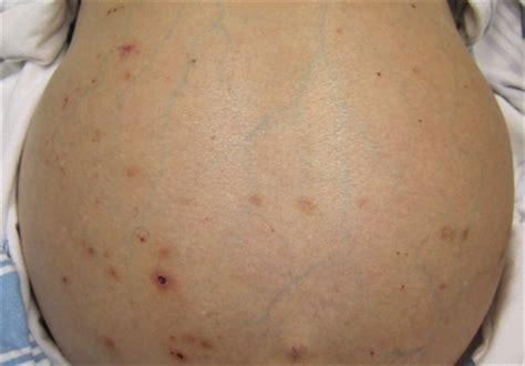 cirrhosis  symptoms treatment cirrhosis