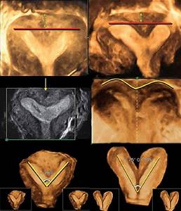 Top  Partial Septate Uterus  The Fundal Line Measure Is