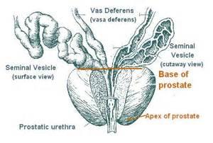 Enlarged Prostate Diagram - newhairstylesformen2014.com  Prostate Diseases Enlarged prostate
