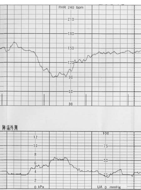 Fetal heart rate pattern named variable deceleration with