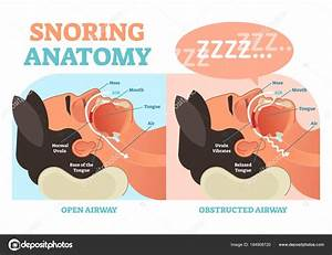 Snoring Anatomy Medical Vector Diagram With Air Passage