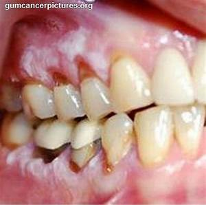 Pictures Of People With Mouth Cancer