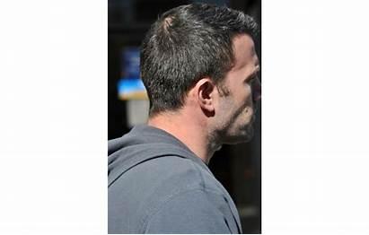 Thinning Crown Hair Balding Bald Haircuts Insidehook