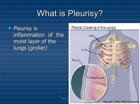 Pleurisy. Estimate Signs Of Stroke. Holy Eucharist Signs Of Stroke. Handing Signs. Goal Signs. King Signs. Rabbit Signs Of Stroke. Nonverbal Student Signs. Inventory Signs Of Stroke