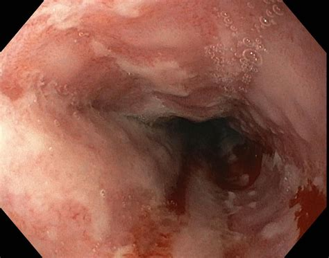 Candida Esophagitis As Related To Sore Throat Pictures