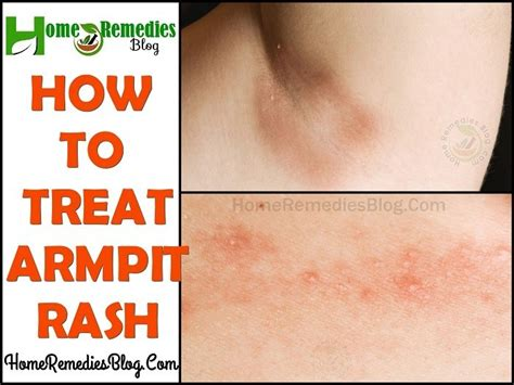 15 Home Remedies For Itchy Armpit Rash