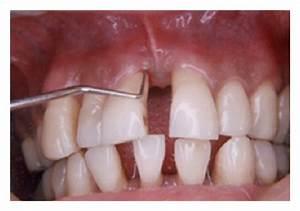 Aggressive Periodontitis; Periodontosis; Periodontitis ...