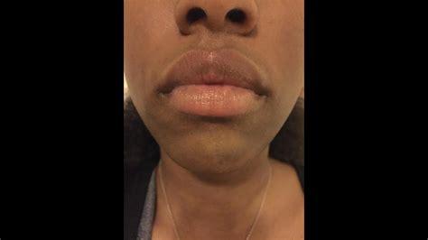 upper lip discoloration cold sores black skin youtube