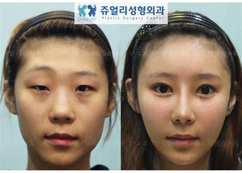 Korean Plastic Surgery Meme - korean plastic surgery before and after memes