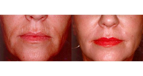 Face Procedures | Anti Wrinkle Injections Sydney | Acne