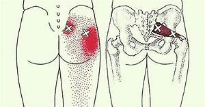 Sciatica Stretches For Pain Relief