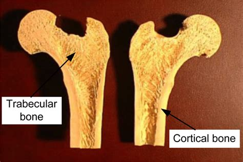 In the last decade, considerable technological improvements have been made to repair damaged bones and tissue, such as bone cross sections with implants for microscopic examinations. A cross-sectional view of a femur bone.   Download Scientific Diagram