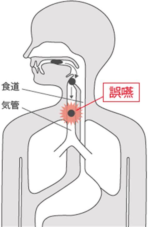 誤 嚥 性 肺炎 終末 期