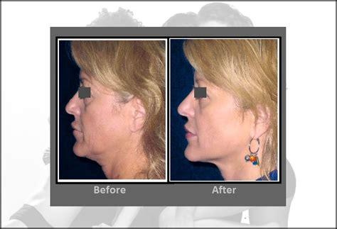 precision tx sidelaze laser face neck lifts hartford