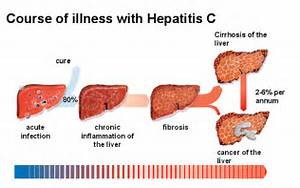 "How to Diagnose Hepatitis C? – Tests and ""New"" Treatment Hepatitis"