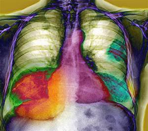 Lung Cancer, X-ray Photograph by Du Cane Medical Imaging Ltd