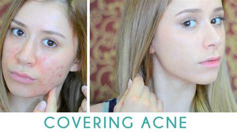 cover acne   cakey biibiibeauty