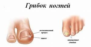 Грибок ногтей на ногах у детей видео