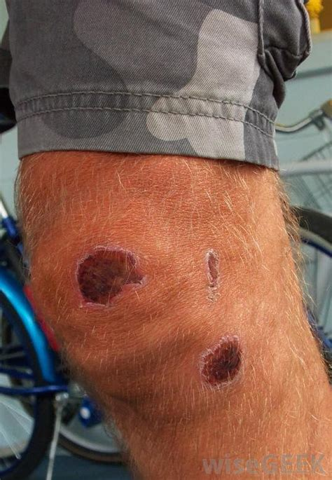 Knee Rug Burn by What Causes An Itchy Scab With Pictures
