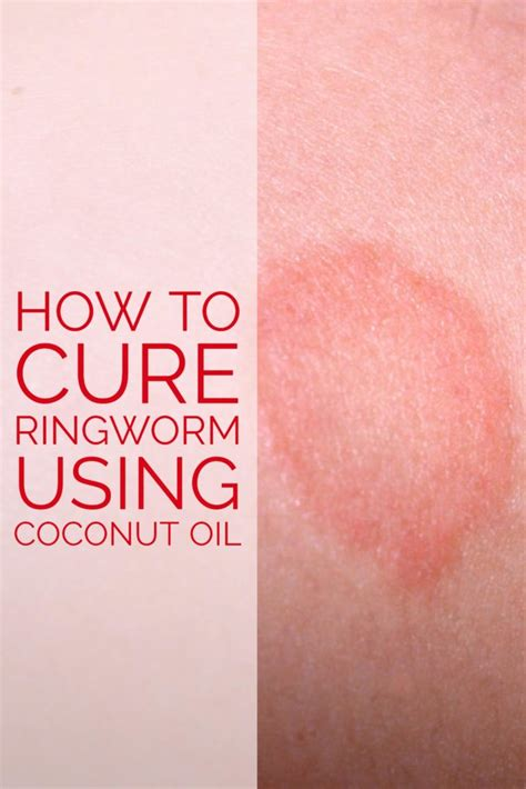 How to Cure Ringworm using Coconut Oil