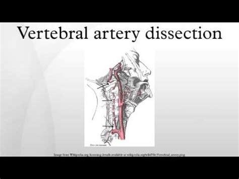 Vertebral artery dissection - YouTube
