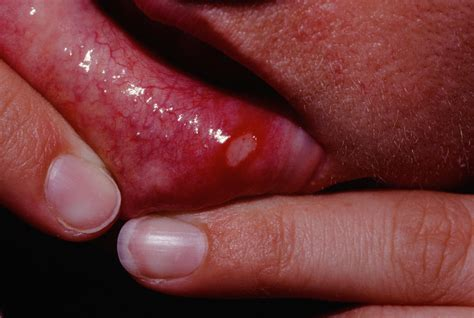 Herpes Ulcers Pictures Photos