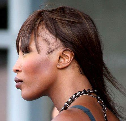 Tempes dégarnies et cheveux crépus : Causes et solutions
