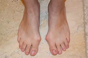 Update  U0026 Possible Right Foot Bunion Coming Back   U2013 Lapidus