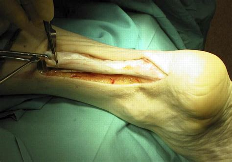 Meniscopatia Degenerativa Interna by Health And Tips Treatment Of Achilles Tendon Rupture