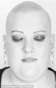Alopecia Awareness Its Just Hair