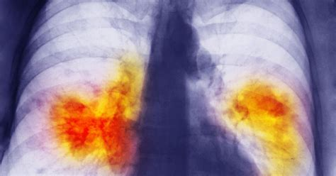 cancer lung drug patients mirror destruct self chest per gives