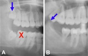 Symptome Dent De Sagesse : dents de sagesse mythes et r alit s ~ Maxctalentgroup.com Avis de Voitures