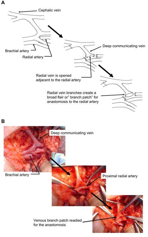 proximal radial artery arteriovenous fistula