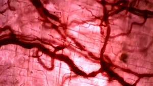 Bright Field Microscopy Vasodilation Bright Field Microscopy Youtube