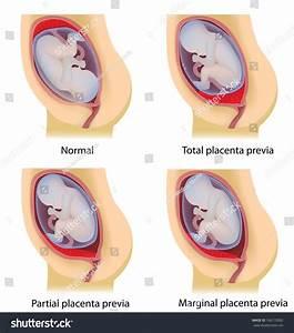 Low Lying Placenta Placenta Previa Stock Illustration
