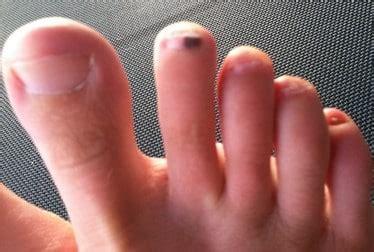 black spot   toenail  fungus