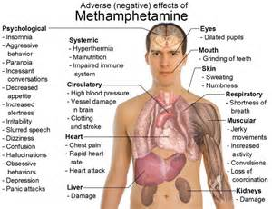 Meth Mouth: The Effects of Methamphetamine On Your Teeth