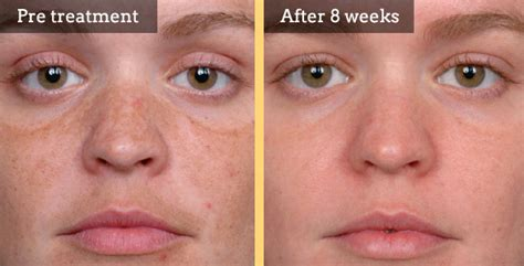 blue light treatment for sun damage skin pigment treatments welwyn skin clinic welwyn clinic