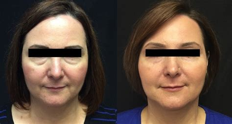 sculptra    pictures clear lake dermatology