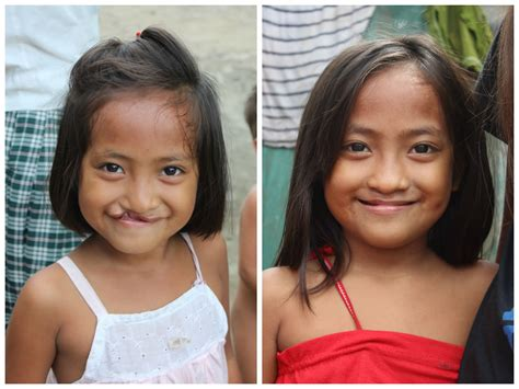 Cleft Lip Charity We Work Philippines Smile Stories