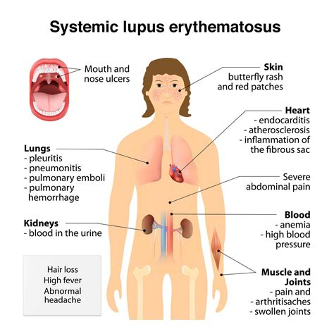 Lupus Causes Symptoms And Research