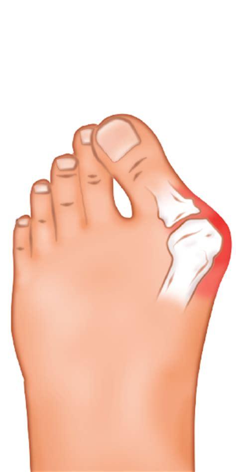 pied de le boule oignon au pied hallux valgus causes et sympt 244 mes podiatre 411